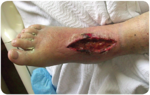 Case Study - Traumatic Foot Wound - 1 of 3