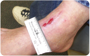 Case Study - Traumatic Foot Wound - 2 of 3