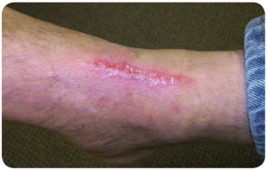 Case Study - Traumatic Foot Wound - 3 of 3